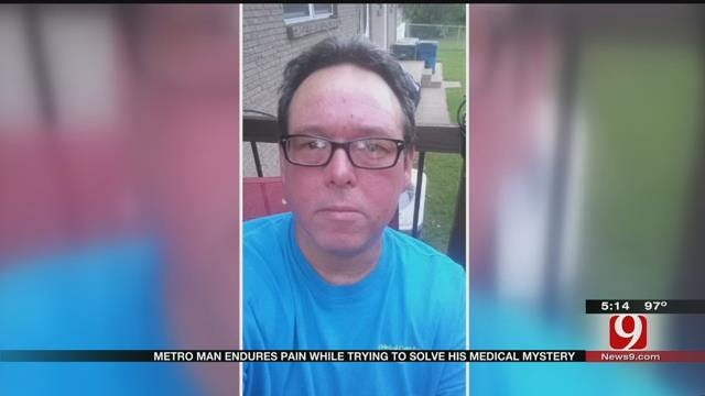 Edmond Man Endures Pain As Doctors Try To Solve Medical Mystery