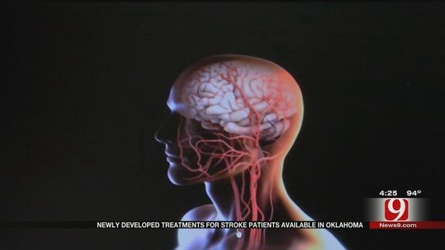 Medical Minute: Stroke Treatments