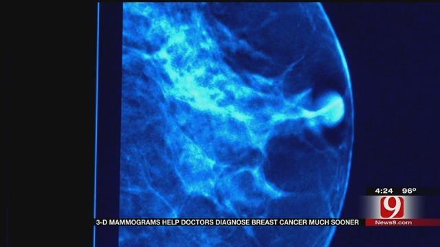 Medical Minute: 3D Mammograms