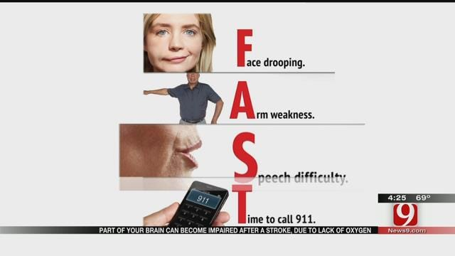 Medical Minute: Spotting A Stroke FAST