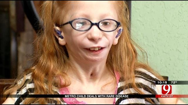 Metro Girl With Rare Condition Hopes To Make It To The Bayou