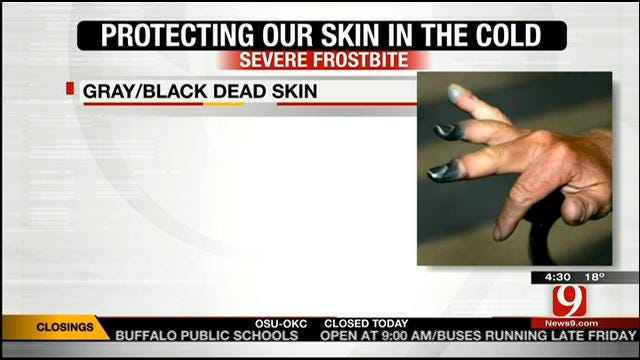 Medical Minute: Protecting Our Skin In The Cold