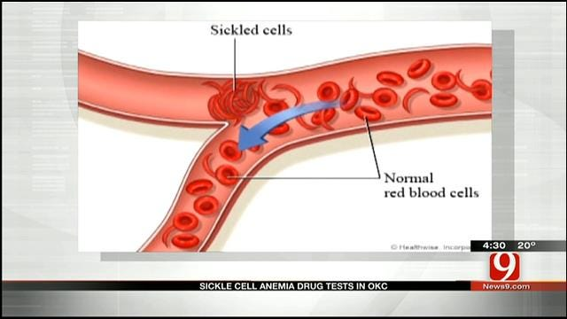Medical Minute: Sickle Cell Anemia