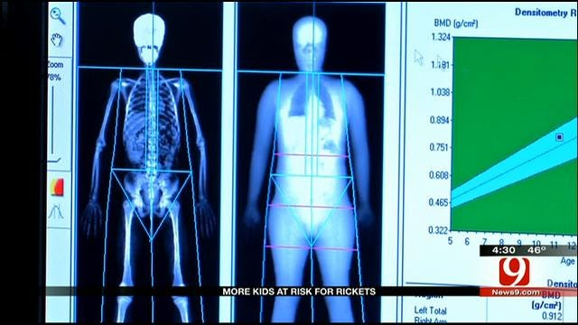 Medical Minute: More Kids At Risk For Rickets