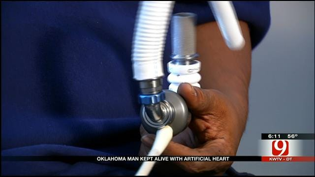 Tulsa Man Kept Alive With Artificial Heart