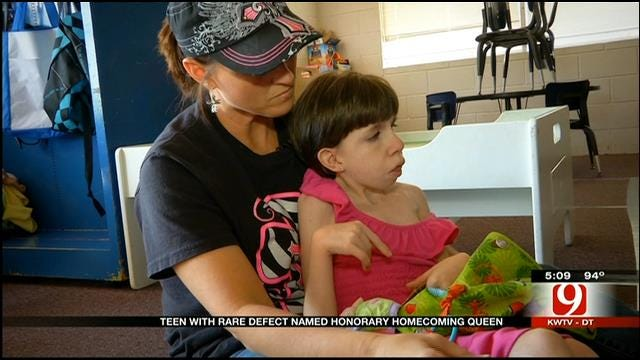 HS Senior With Special Needs To Be Named Honorary Homecoming Queen