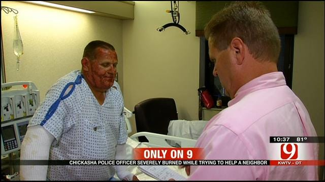 Chickasha Officer Recovering From Severe Burns