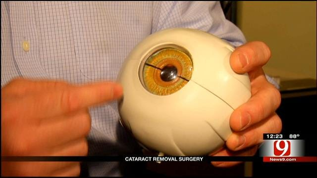 Medical Minute: Cataract Removal Surgery