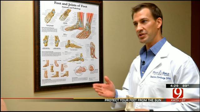 Medical Minute: The Danger Of Sunburned Feet