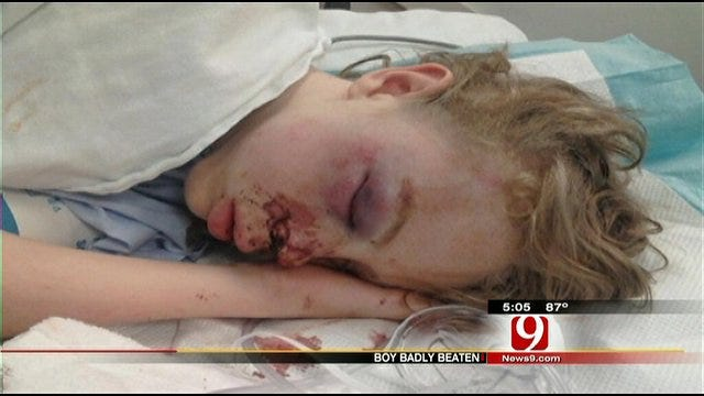 Enid Teen Injured In Fight With Classmate Released From Hospital
