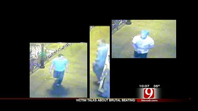 Bricktown Beating Victim Speaks Out In Hopes Of Finding Attackers