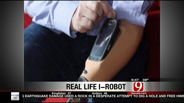 Man Has Smartphone Dock In Prosthetic Arm