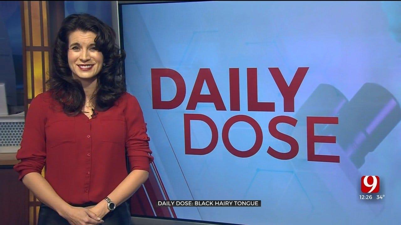 Daily Dose: Black Hairy Tongue