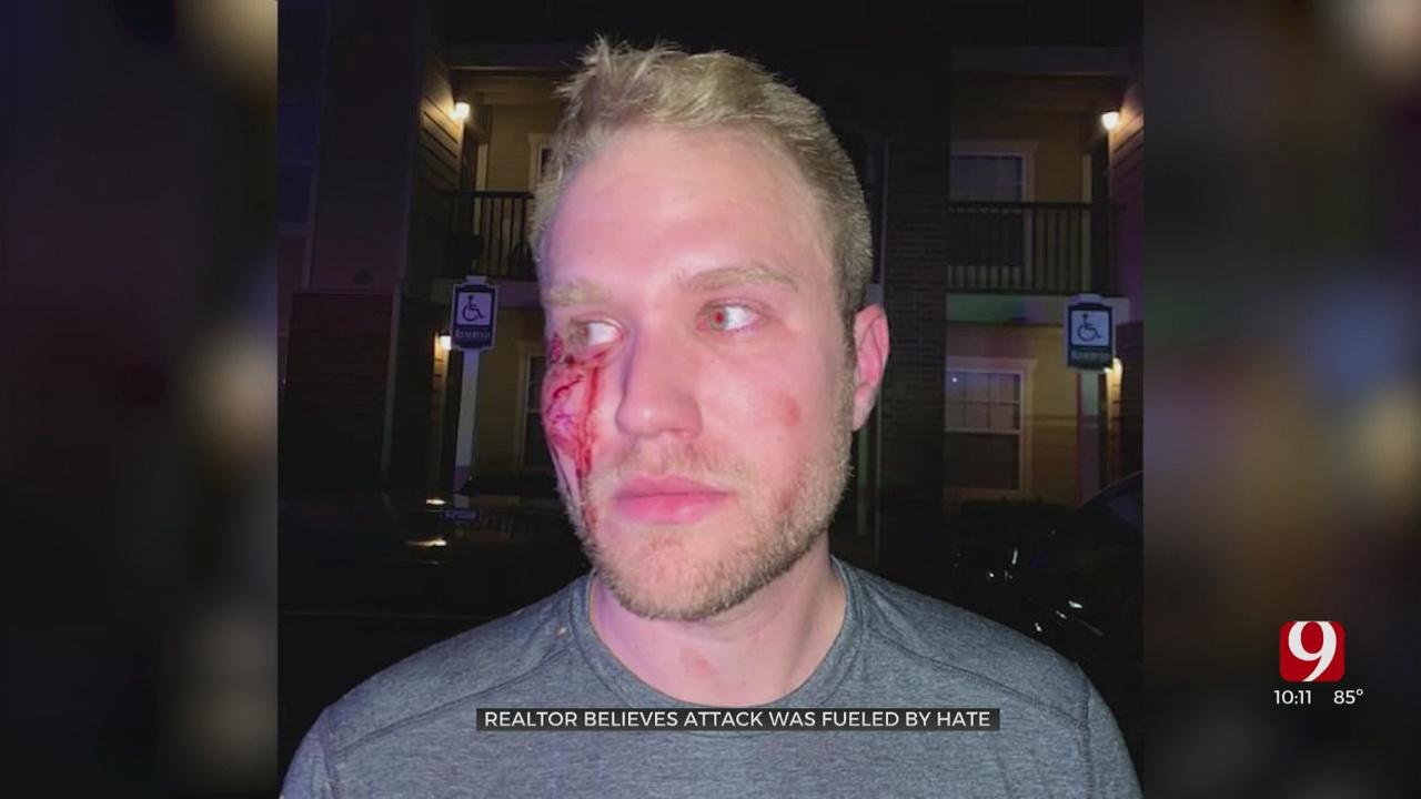 2 Arrested For Yelling Homophobic Slurs At OKC Relator, Beating Him Unconscious