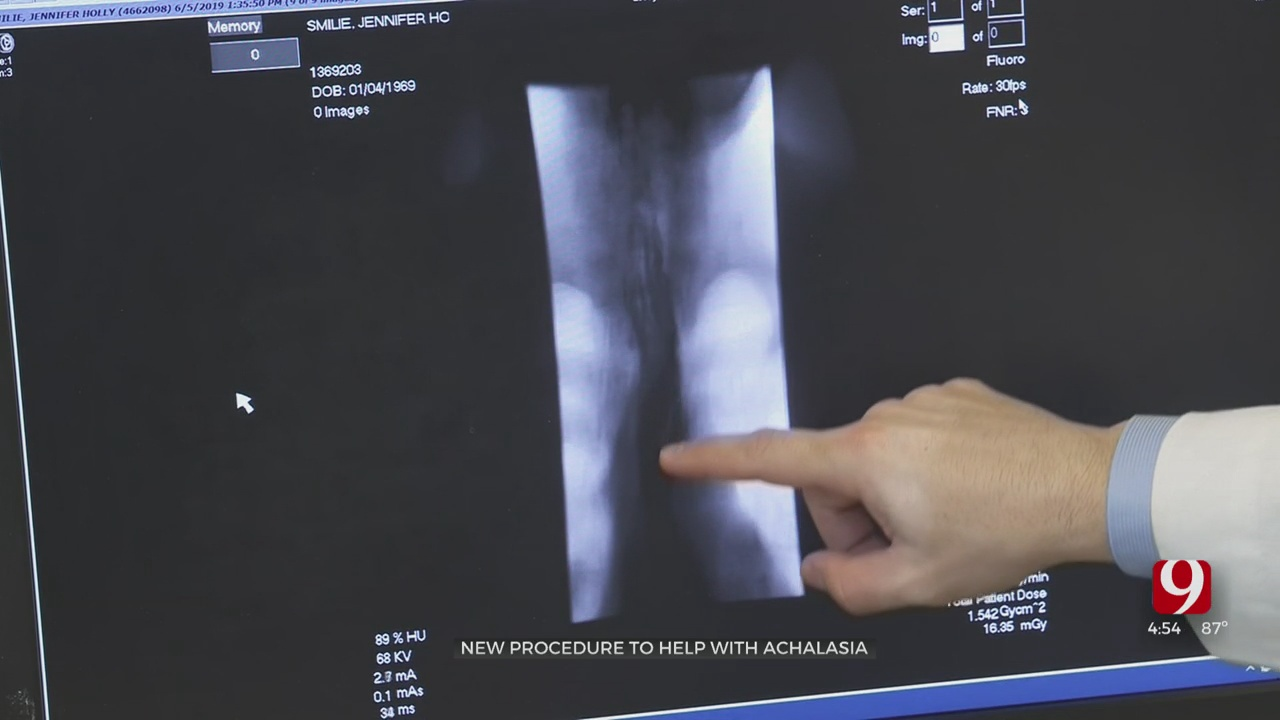 Medical Minute: New Procedure To Help With Trouble Swallowing