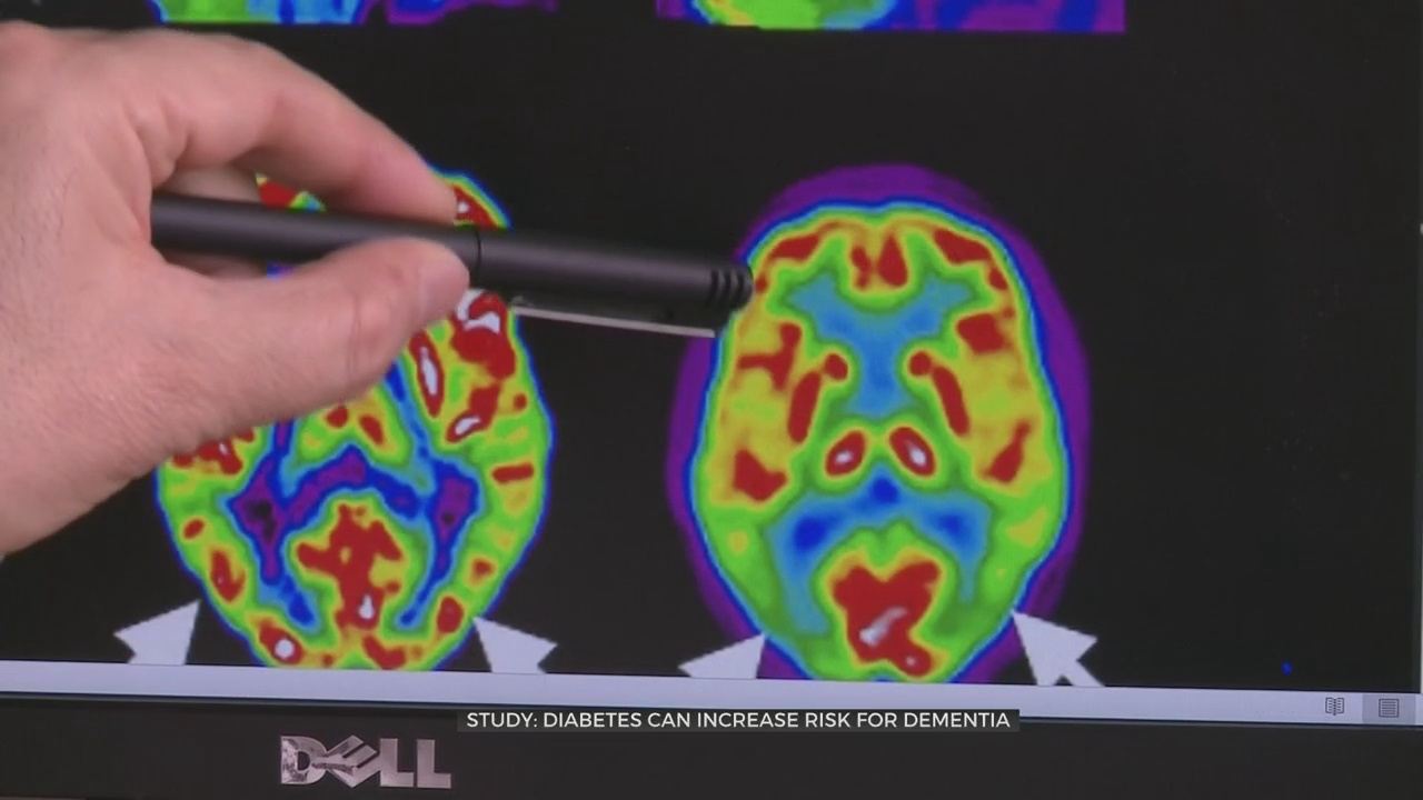 Medical Minute: Diabetes Can Increase Risk For Dementia