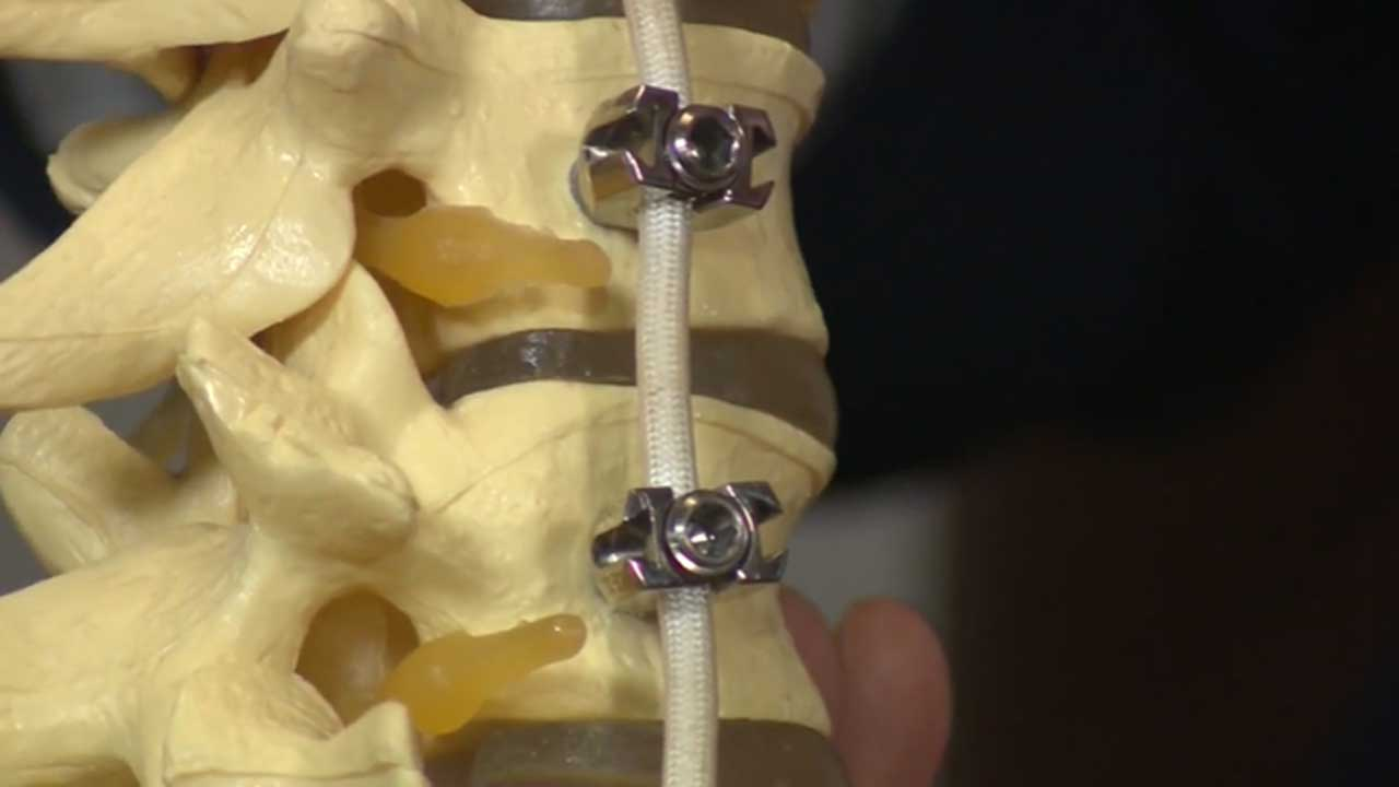 New Surgery Helps Scoliosis Patients Get Back On Their Feet Faster