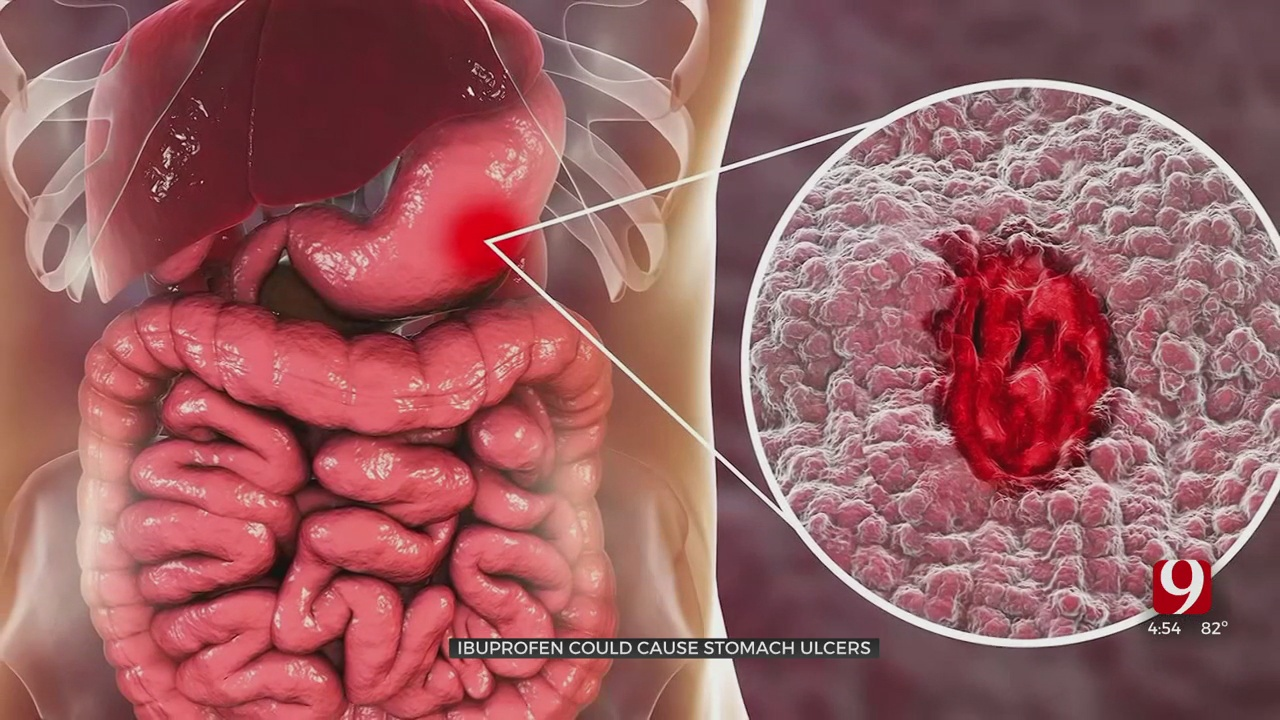 Medical Minute: Ibuprofen Could Cause Stomach Ulcers